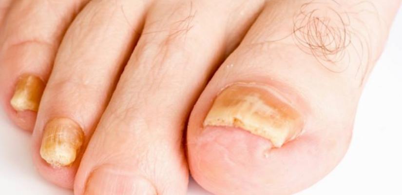Kalknagels - voetverzorging Elleance Berlaar